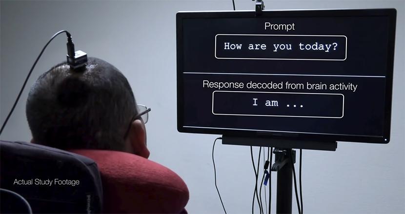 """15年以上、言葉を発せなかった脳卒中男性が""""脳インプラント""""で会話が可能に。脳の電気信号をコンピューターが解読"""