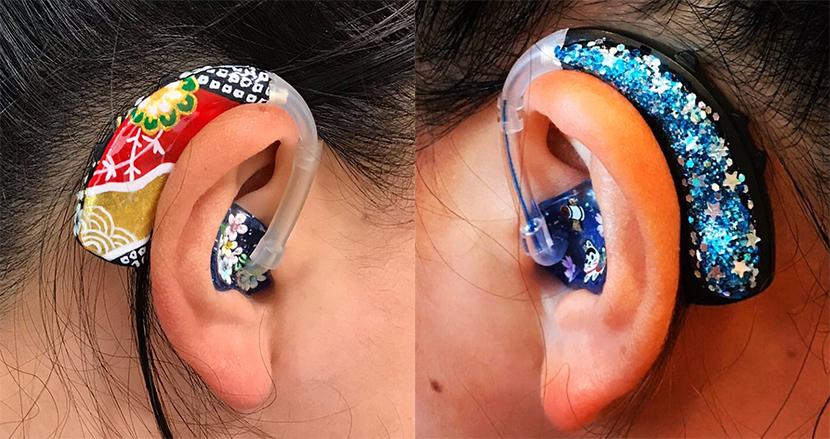 オシャレで可愛い「デコ補聴器」がSNS上で注目の的。開発者が明かす「世の当たり前」を変える決意