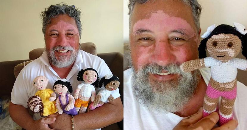 障害を抱えた子どもたちを勇気づけるため、白斑の男性が編んだ毛糸の人形がSNSで話題に