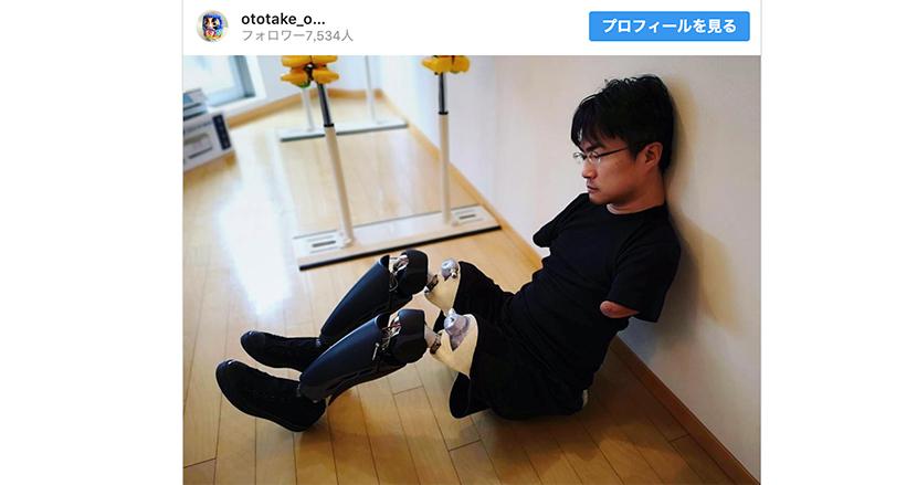 義足に挑戦する乙武洋匡さんに、人工内耳の装用で悪戦苦闘した体験者から応援の声