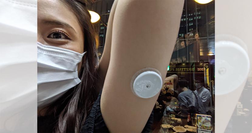 腕に針を刺して血糖値を24時間測定。 #NT血糖値観察会 に見る、ホビーイノベーションの可能性【連載】高須正和の「テクノロジーから見える社会の変化」(8)